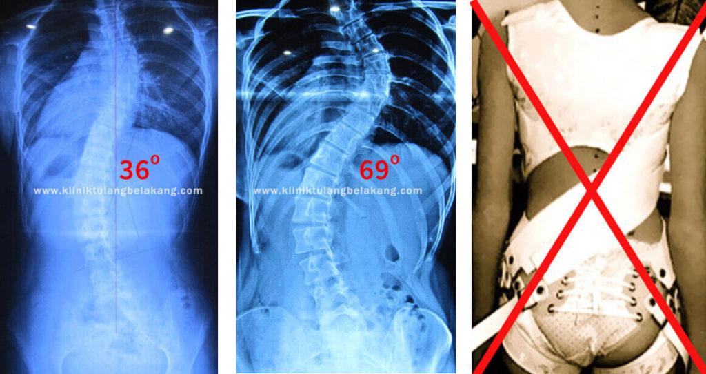 Bukti Brace GBW merupakan Solusi bagi Pasien Scoliosis